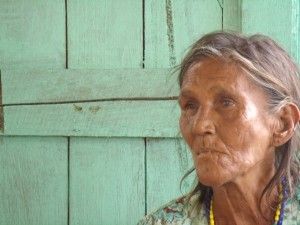 Theresa, a 62-year-old alcoholic street person in Guyana, has one of the biggest hearts I've ever encountered.
