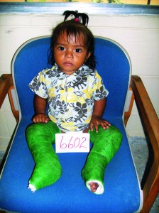 After: Doctors corrected Nissi's condition in both feet — praise God!