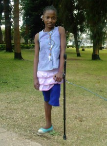 Agness, 12, was born with a genetic deformity on her left leg. She endured mean-spirited teasing and ridicule from her community because of it. She eventually lost her leg after a complicated surgery and had to use crutches to get around.